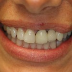 Smile Redesign - This case required a combination of crowns, veneers and a bridge.
